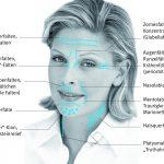 Ästhetische Botulinum Therapie